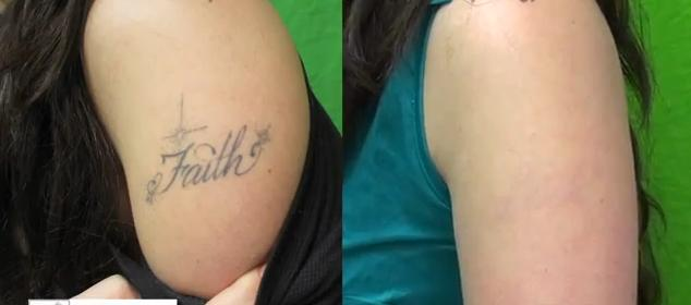 Does Laser Tattoo Removal Hurt Ideas And Designs