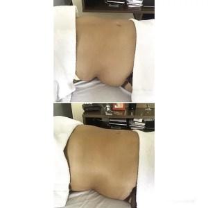 drenagem linfática emagrece, antes e depois, clínica estética, tay akemi, mulher