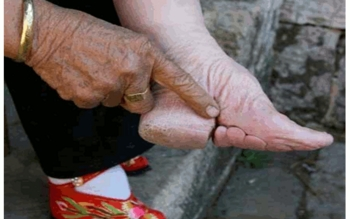 små fötter kina