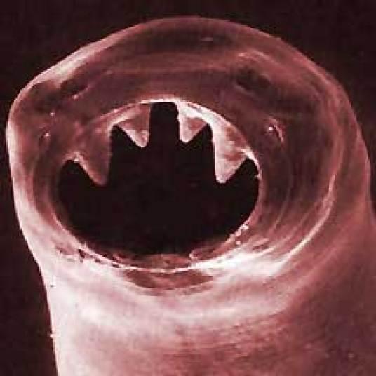 Resultado de imagen de intestinos con gusanos
