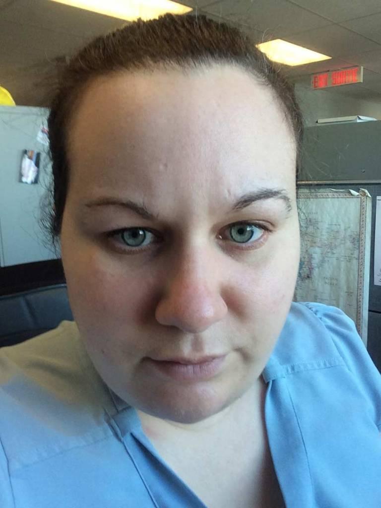 Myranda's face without makeup