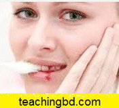 1. Suddenly blood from the gums