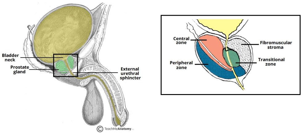 medium resolution of fig 2 the anatomical position and zones of the prostate