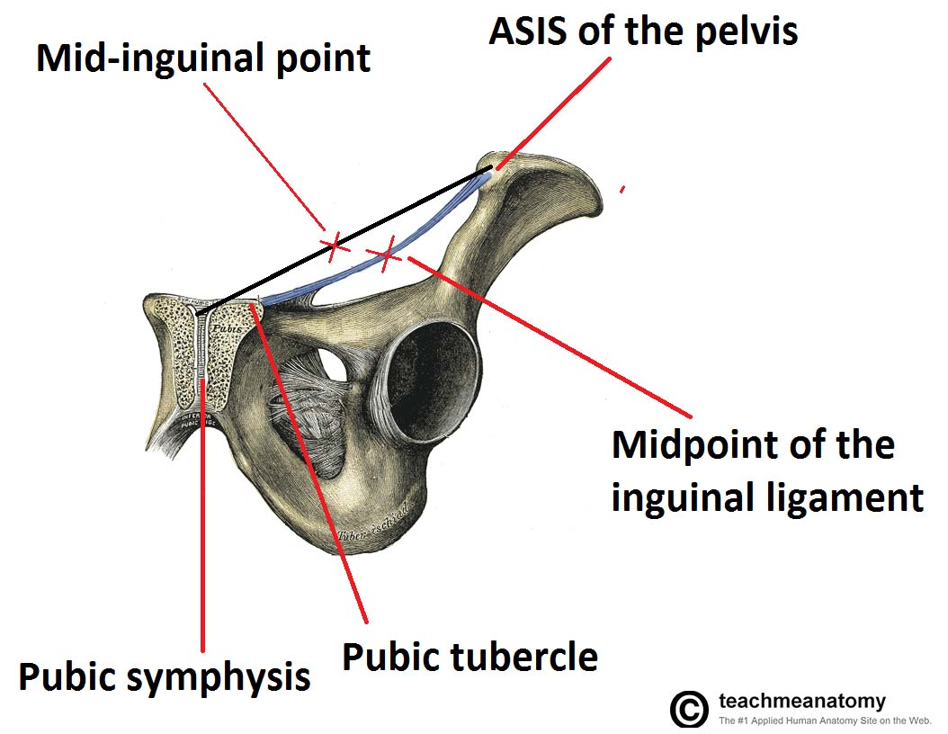 hight resolution of fig 3 coronal view of the pelvis demonstrating the mid inguinal point and the midpoint of the inguinal ligament