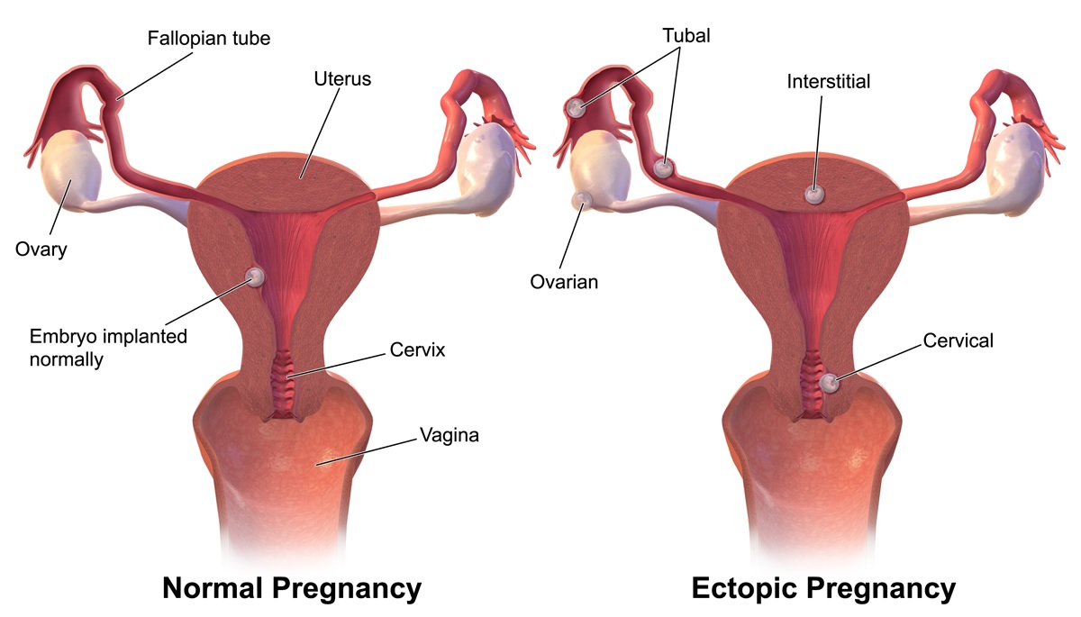 hight resolution of ectopic pregnancy rupture symptoms management teachmeobgynteachmeobgyn