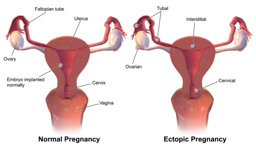 small resolution of ectopic pregnancy rupture symptoms management teachmeobgynteachmeobgyn