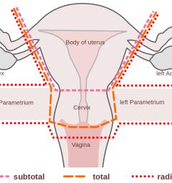 hysterectomy [ 1303 x 859 Pixel ]