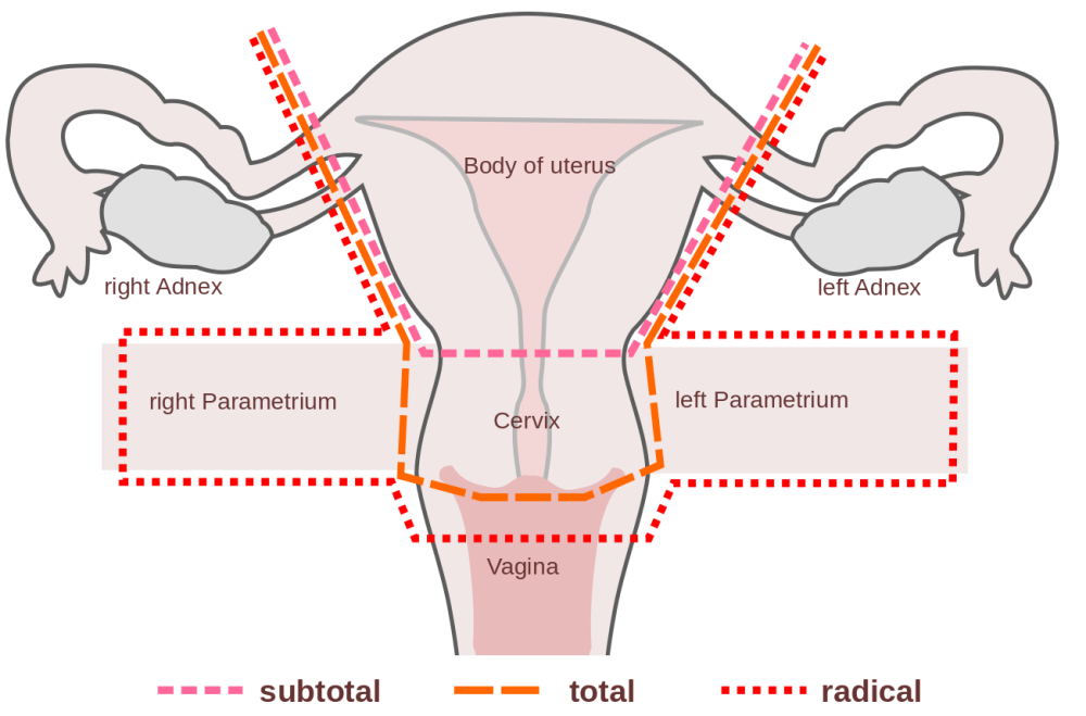 medium resolution of hysterectomy