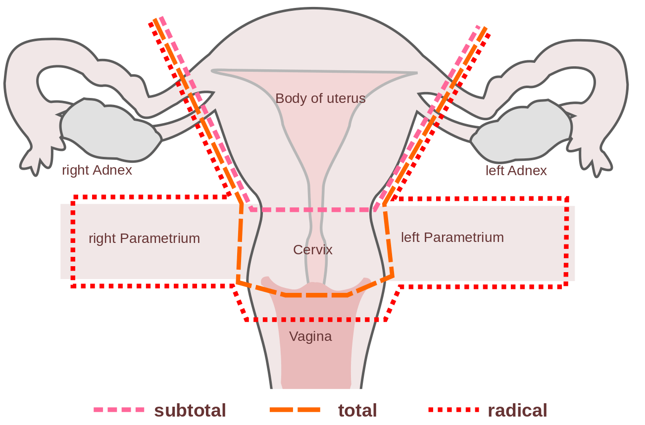 hight resolution of hysterectomy