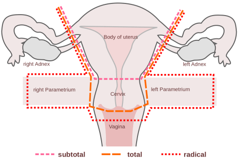small resolution of hysterectomy
