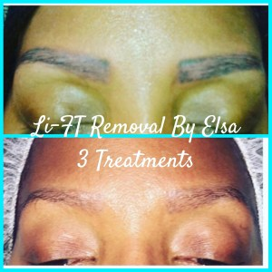 Lift Permanent Brow Removal by Elsa Torresiani, CPCP