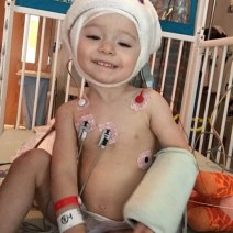 2nd surgery and still smiles!