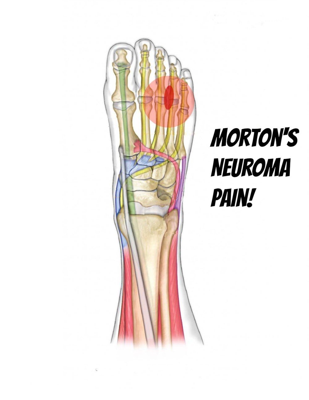 medium resolution of is your foot hurting
