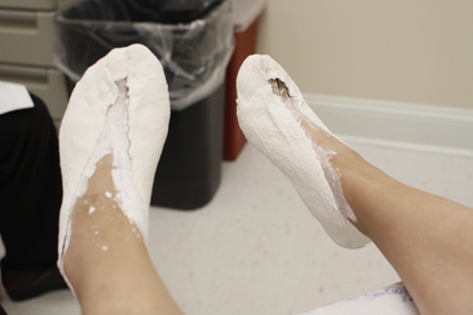 My feet being casted for orthotics