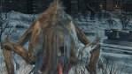 【ブラッドボーン】カインハーストの最初の蜘蛛?ノミ?がクッソムカつく【Bloodborne】