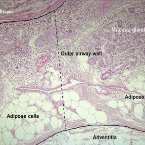 fatty tissue 2