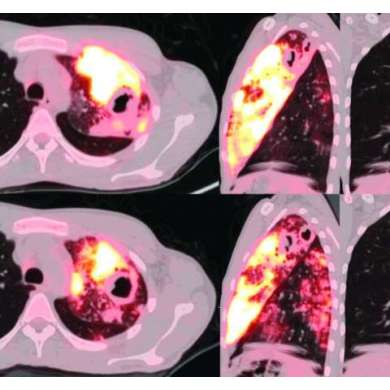 PET and CT scans provide keen views of lungs with active TB, and are better assessment tools than sputum tests