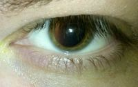 A human eye after the pupil was dilated using ...