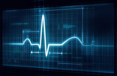 Cardiomatics receives $3.2M to support its ECG-reading AI