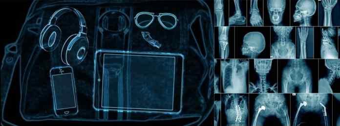 X rays