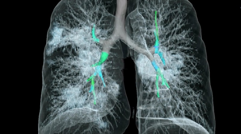 AI helps radiologists distinguish coronavirus from community-acquired pneumonia in chest CT 2