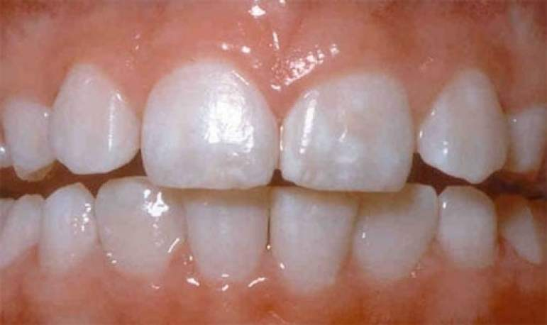 Lack of fluoride can cause cracked teeth