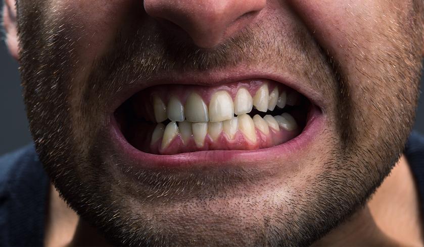 teeth grinding can cause cracked teeth