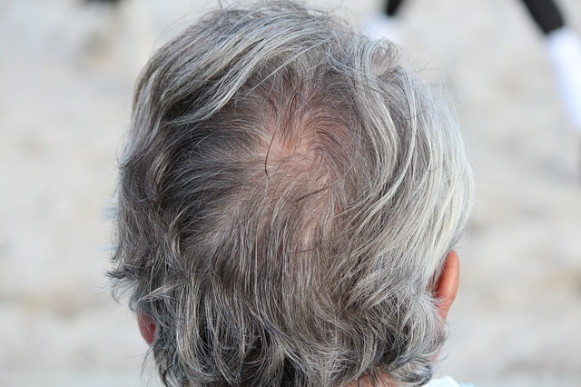 Grey Hair Causes, Home Remedies and Best Hair colors | Grey
