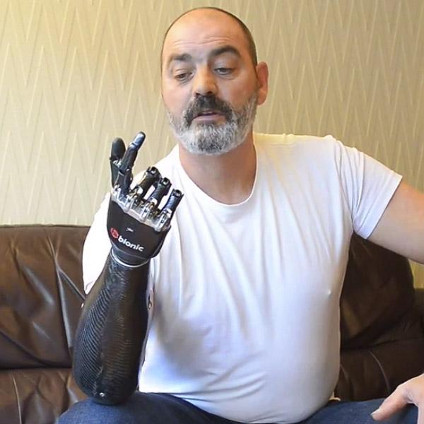 bebionic3 bionic prosthetic hand