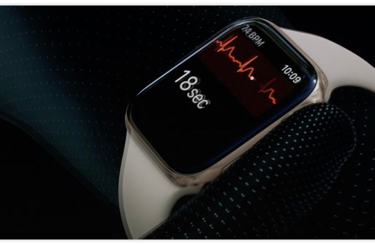 The Apple Watch EKG detects evidence of a heart condition that was missed in the hospital ECG
