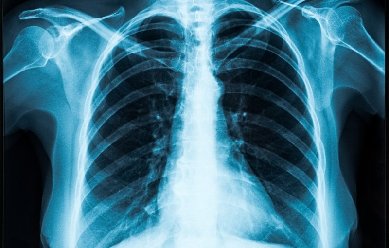 How X-Rays Influence Our Daily Lives