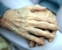 Hands with arthritis (NIH)