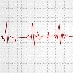 EKG (Photos8.com)