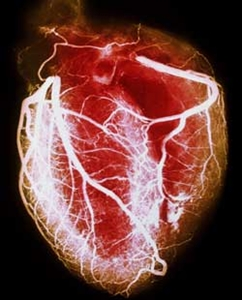 Heart angiogram