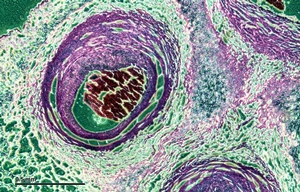 Microscopic view of umbilical cord
