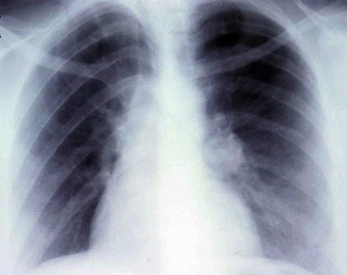 Carcinoid lung tumor