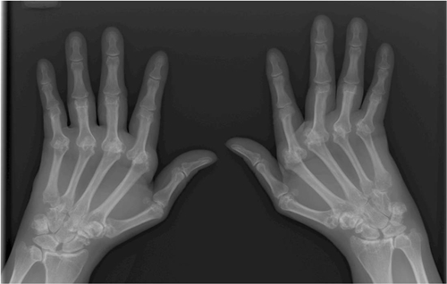X-ray f hands with rheumatoid arthritis