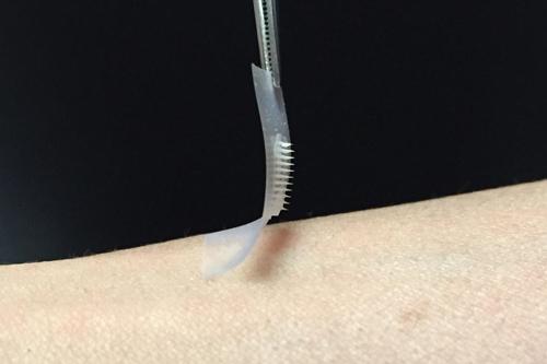Smart insulin skin patch
