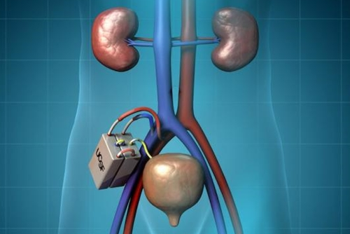 Implanted artificial kidney