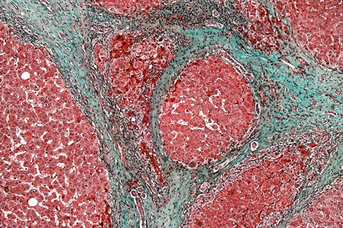 Liver cells with cirrhosis