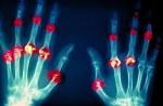 rheumatoid arthritis damage