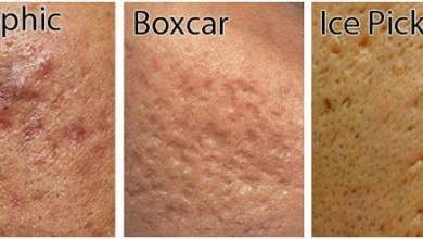 How to Get Rid Of Ice Pick Acne Scars?