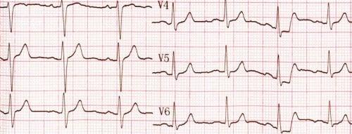 EKG - Serce imózg