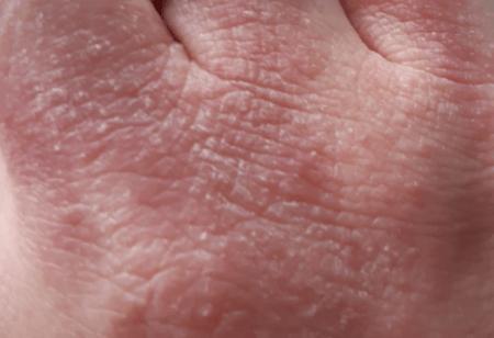 AZS-skóra-dłoni