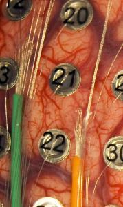 brain electrodes