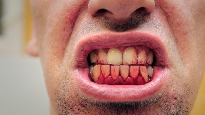 krwawiace usta niedobór witamin