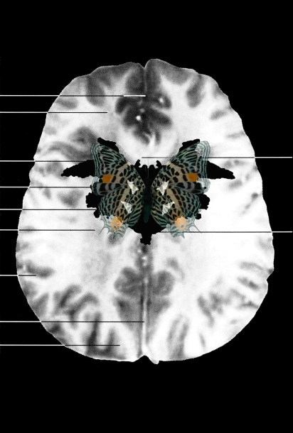"Figure D: MRI Butterfly (I), 2008 Inkjet print on watercolor paper 13"" x 19"""