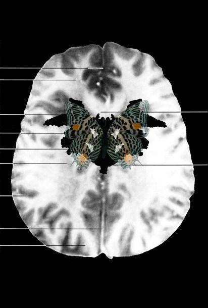 """Figure D: MRI Butterfly (I), 2008 Inkjet print on watercolor paper 13"""" x 19"""""""