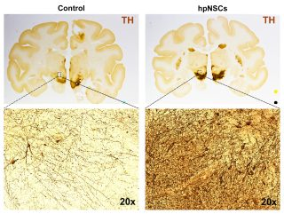Monkeys with symptoms of Parkinson's disease recreated a dense network of neural pathways after treatment with a type of non-embryonic stem cells. (photo courtesy International Stem Cell Corp.)