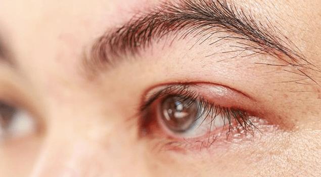 眼瞼炎,圖片來源:123rf圖庫